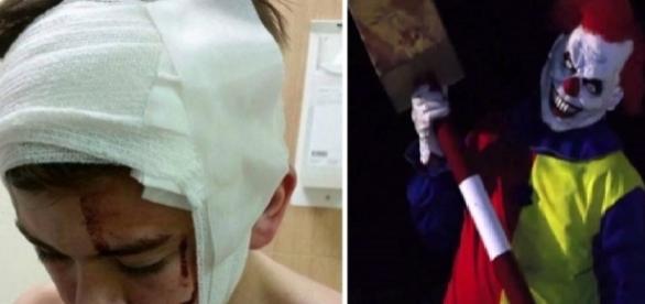 Menino é agredido por palhaço diabólico