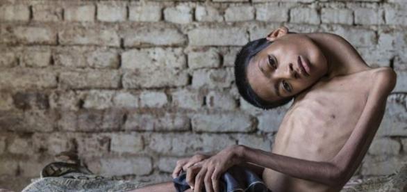 Un chico con una enfermedad rara recibe una cirugía salvadora ... - 20minutos.es