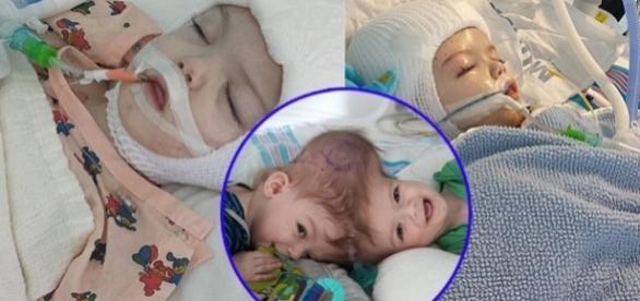 Gemeni uniți în zona capului separați printr-o operație de 20 ore - Foto: Facebook