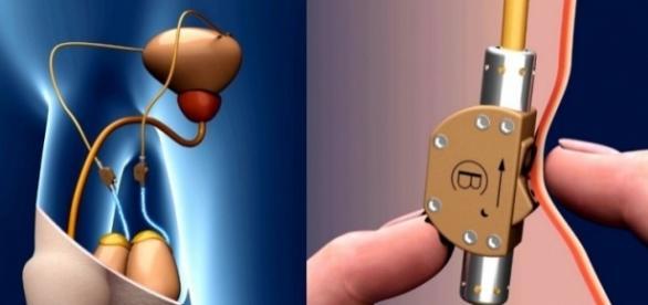 Interruptor no corpo masculino bloqueia a passagem dos espermatozoides