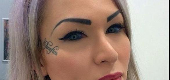 Imagem da mulher que injetou tinta nos olhos