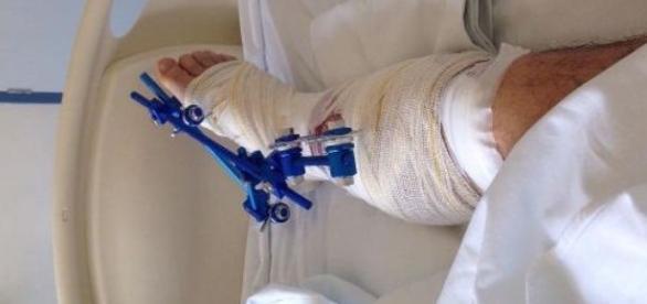 Ator da Globo sofre grave acidente