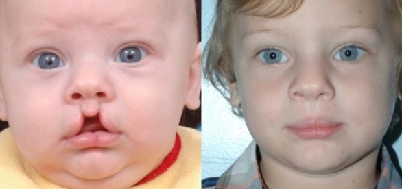 Fissura Labiopalatina bilateral - Antes e depois da cirurgia de reparação