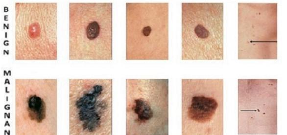 Seguendo le indicazioni suggerite dalla sigla ABCDE si può identificare un melanoma in una fase precoce.