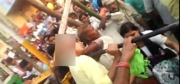 Imagens de menina vítima de escalpelamento