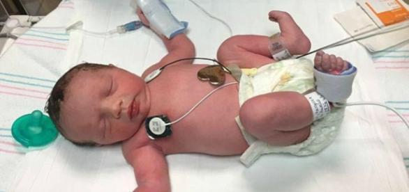 Lynlee nasceu por duas vezes, em um caso médico fantástico