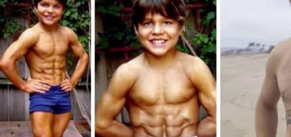 """Richard Sandrak foi considerado o """"menino mais forte do mundo"""", mas hoje em dia está bastante diferente."""