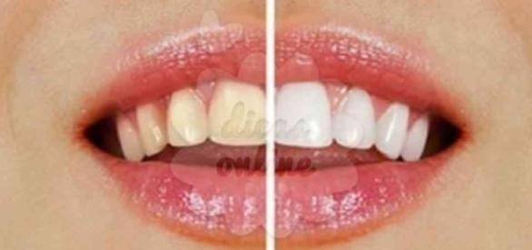 Dentes claros sem ir ao dentista? Sim! É possível!
