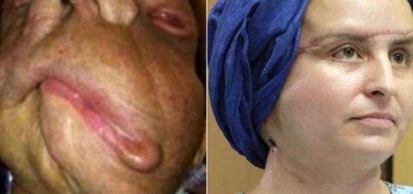 Joanna antes do procedimento cirúrgico (Reprodução de foto do jornal britânico Daily Mail)