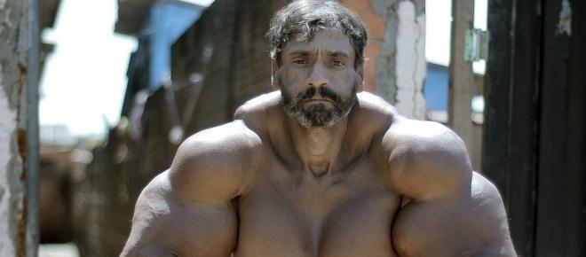 Brasileiro injeta óleo para aumentar os músculos e fica com aparência bizarra