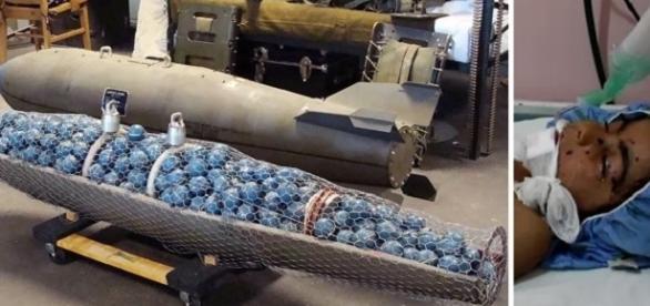 Criança de 4 anos morre ao confundir bomba com brinquedo na Síria