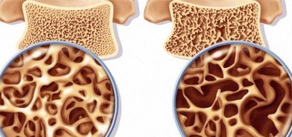 Dia Mundial da Osteoporose: doença também atinge os homens