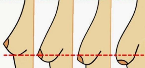 Os estágios dos seios femininos