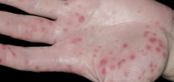 Hand, foot and mouth disease: First vaccine - BBC News ...- bbc.com