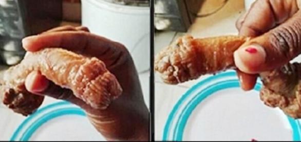 Imagens de uma suposta genitália