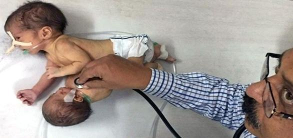 Criança nasceu com cabeça e braços do seu irmão gêmeo (foto: google imagens)