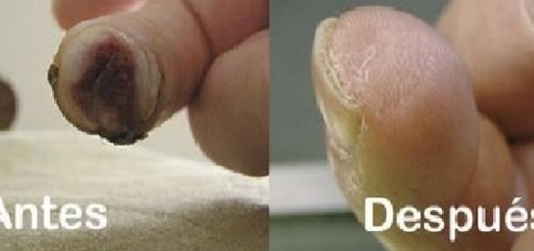 Dedo de Lee Spievack antes y despues del proceso
