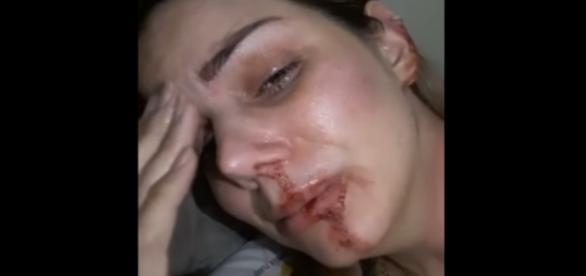 Miss Piauí divulga vídeo na internet, alegando que foi agredida pelo ex-companheiro