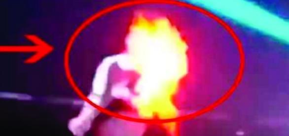 Michael Jackson sofre acidente grave: seu cabelo pega fogo