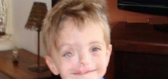 Imagem de Zak após sua recuperação