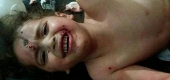 Criança síria no hospital, após o bombardeio (Foto: Reprodução/Twitter)