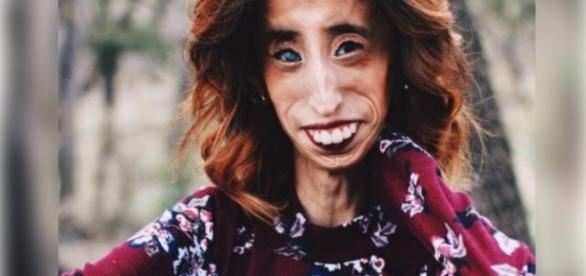 Mulher mais feia do mundo dá lição nas redes sociais