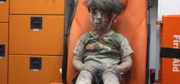 A Wounded Child In Aleppo, Silent And Still, Shocks The World ... - npr.org