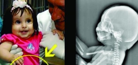 Aos 6 meses de gravidez, a mulher descobriu que estava crescendo uma cauda em seu bebê