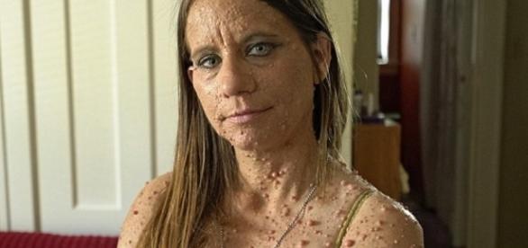 Imagem da mulher com o corpo cheio de caroços