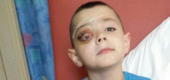 Imagem do garoto diagnosticado com a doença rara.