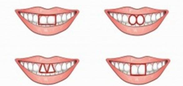 Seus dentes pode indicar se você tem uma personalidade egoísta.