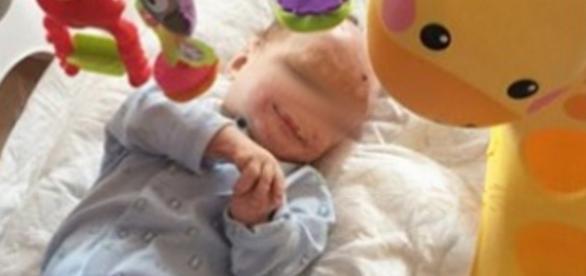 Bebê é andonado pela mãe depois de sofrer queimaduras graves.