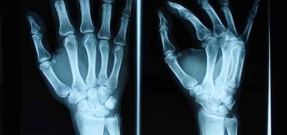 W badaniu wykorzystuje się promienie rentgenowskie