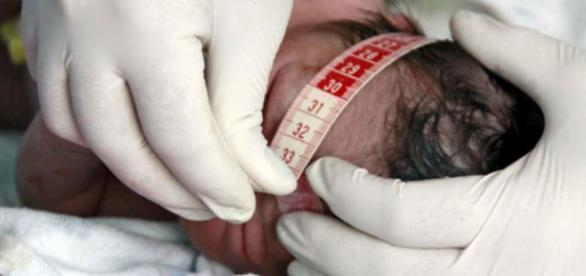 Cidade registra primeiros casos de microcefalia