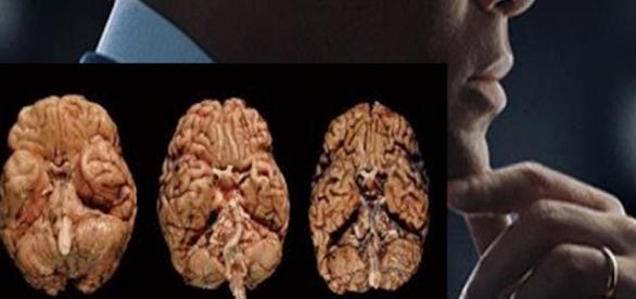O Ator Will Smith e imagens de cérebros com a ETC