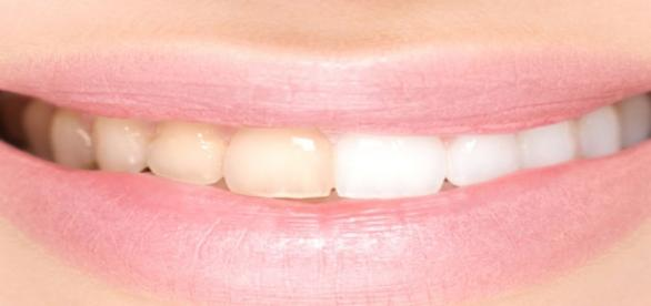 There are several home remedies to whiten teeth/Photo via Freepik.