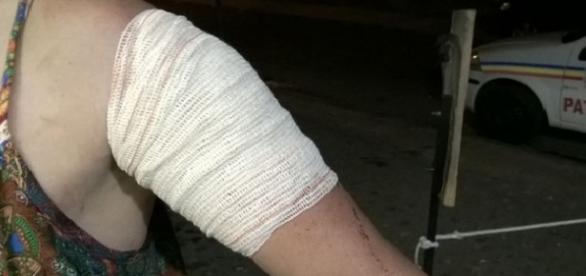 Bandagem mostra local do ferimento no braço de Janine
