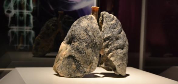 Real Bodies: Raucherlunge, plastiniert