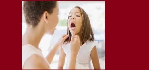combatir las ulceras de la garganta