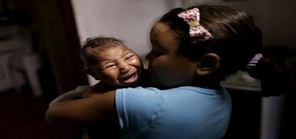 Zika vírus está relacionado à microcefalia em bebês