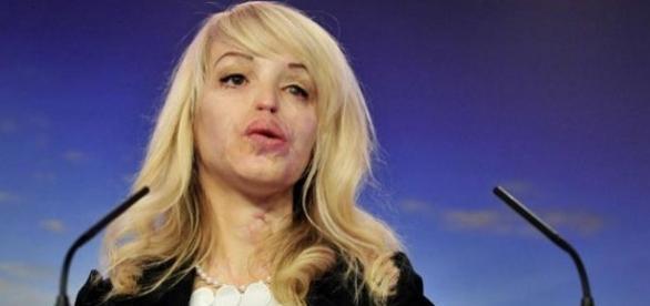 Acid throwing victim courtesy BBC