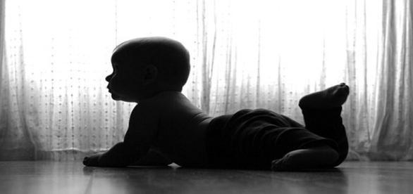 Além de genitália de adulto, bebê apresenta pelos faciais e pubianos