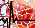 Colesterolo alto: quale sport o attività fisica lo fa abbassare?