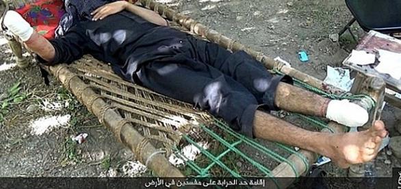 Acusado de roubo no Estado Islâmico tem mãos e pés decepados.