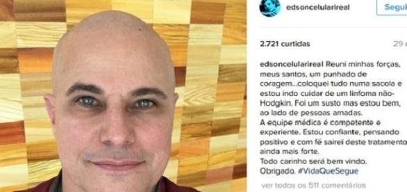 Ator Edson Celulari posta foto careca e revela que está com câncer linfoma não Hodgkin