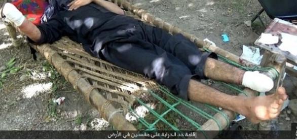 Estado Islâmico decepa mãos e pés de homem suspeito de ser ladrão e o deixa exposto para servir como exemplo.