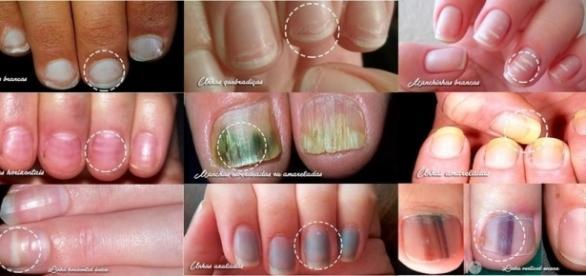 As unhas podem mostrar muito sobre o que passa em nosso organismo se forem bem observadas.