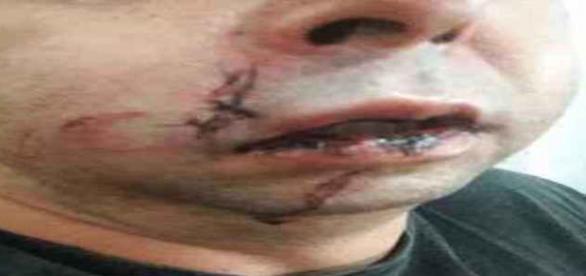 Policial civil foi agredido pela PM
