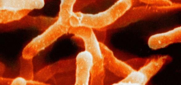 Image of Actinomyces bacteria. Courtesy of Wikipedia.