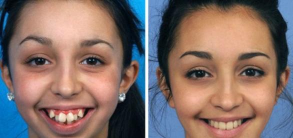 A incrível transformação de Ellie Jones